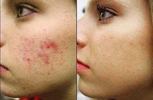 До і після процедури лікування проблемної шкіри у Lazerday