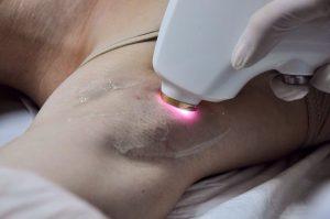 Лазерне видалення волосся