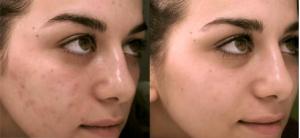 До і після лікування фонофорезом